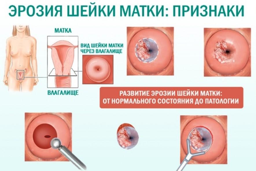 Лечение эрозии шейки матки
